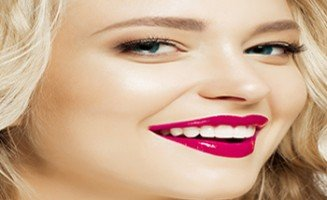 dental-veneers-sydney-327x200