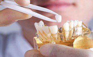 dental_implant_sydney-327x200