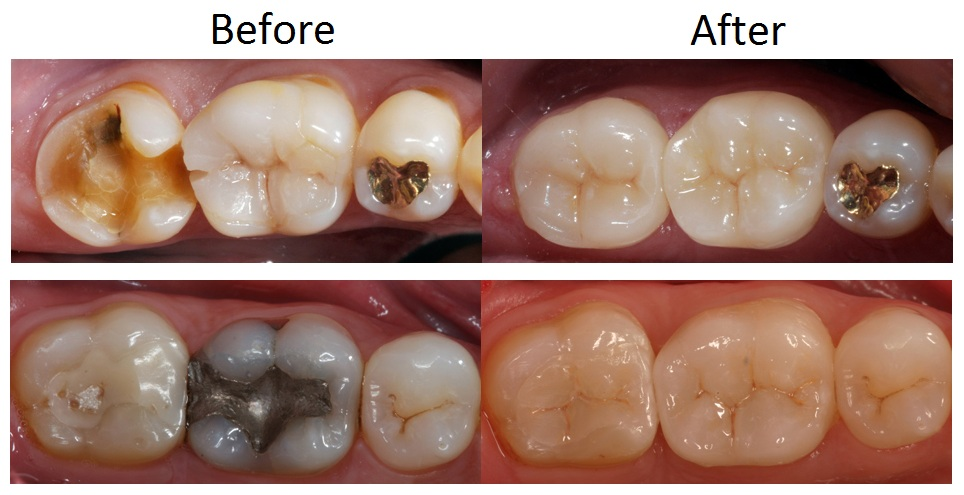 North-Sydney-Dentistry-Crown-Examples-2
