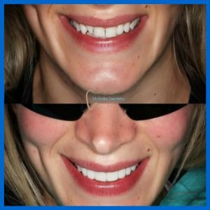 Emax BL2-HT veneers 12-22 with minimal preparation ay Sydney
