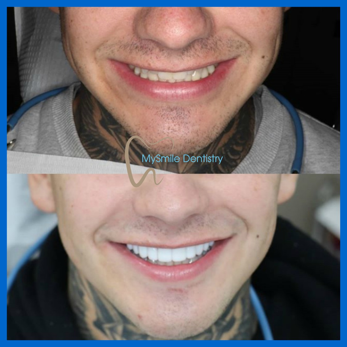 Prepless Emax BL1-LT veneers 15-25 at Sydney