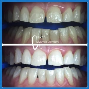 Teeth Whitening in Sydney NSW