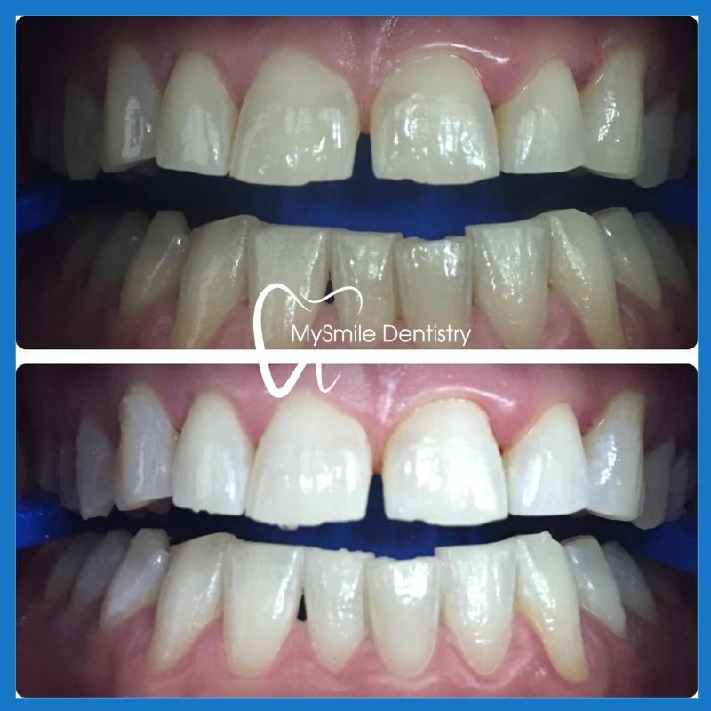 Teeth Whitening in Sydney NSW