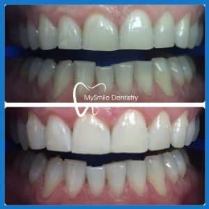 Affordable teeth whitening in Sydney