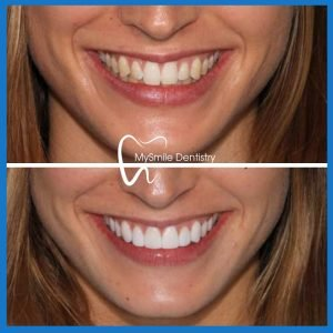 Dental veneers in Sydney