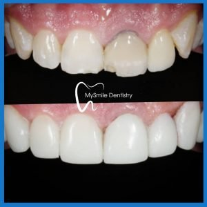 Composite veneers in Sydney