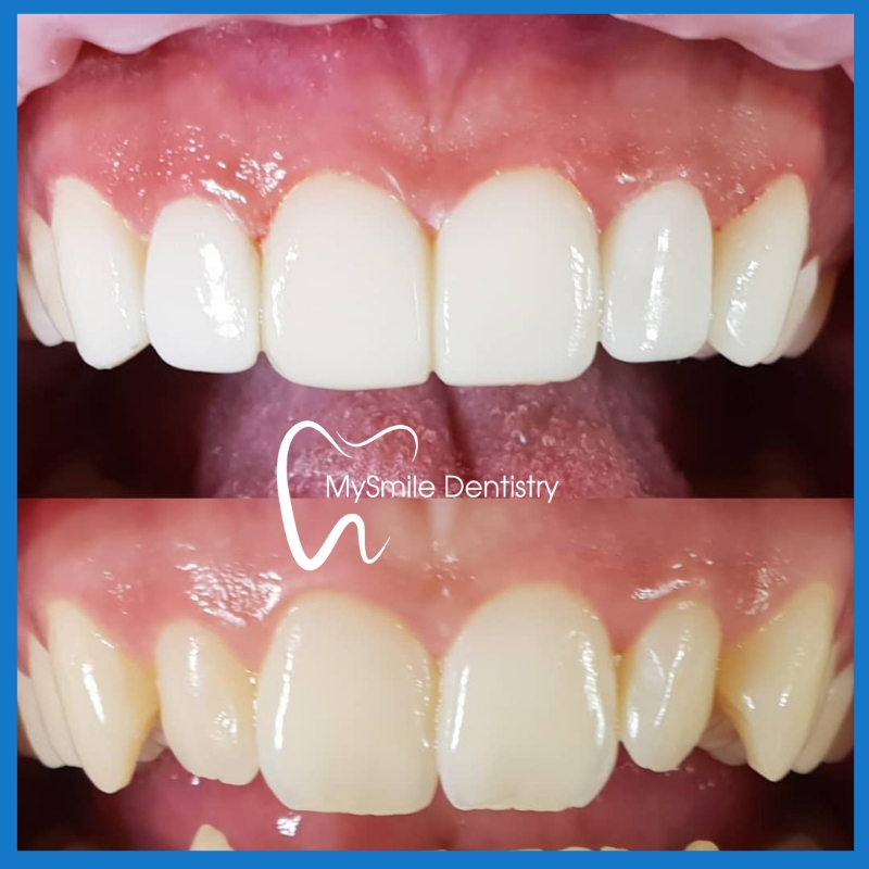 Affordable Veneers in Sydney