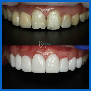 Zircad Prime BL2-LT veneers and bridge at Sydney