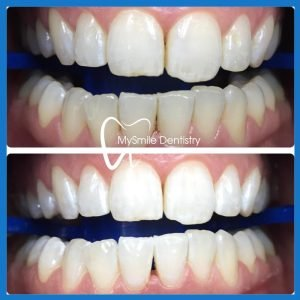 Best dentist for teeth whitening in Sydney