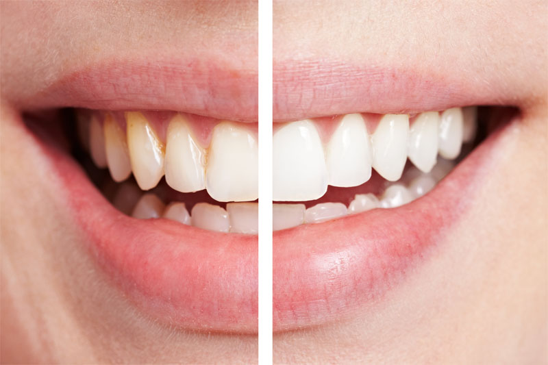 We are the best dentistry for dental veneers in Sydney.