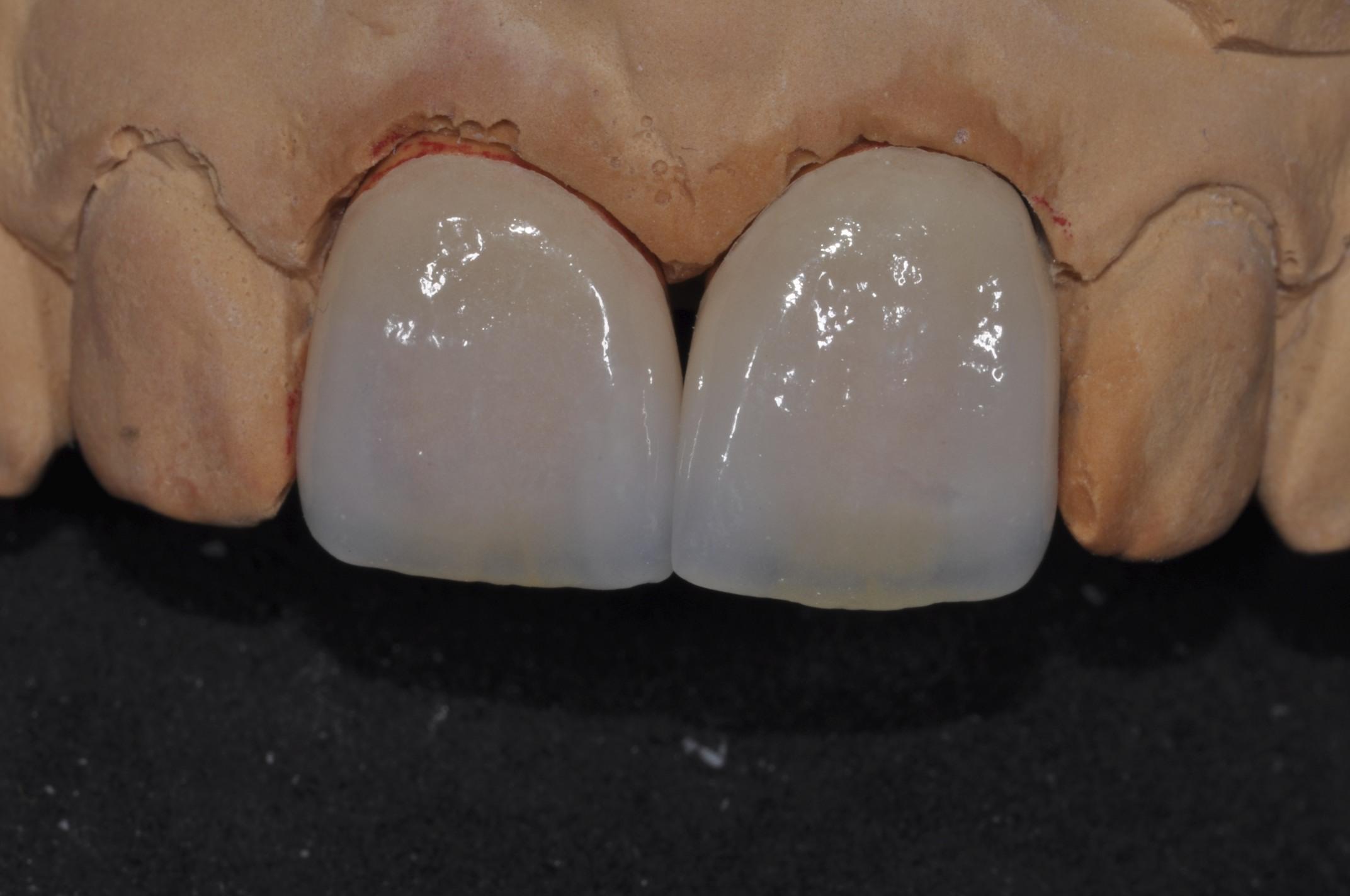 We are the experts of teeth veneers in Sydney.