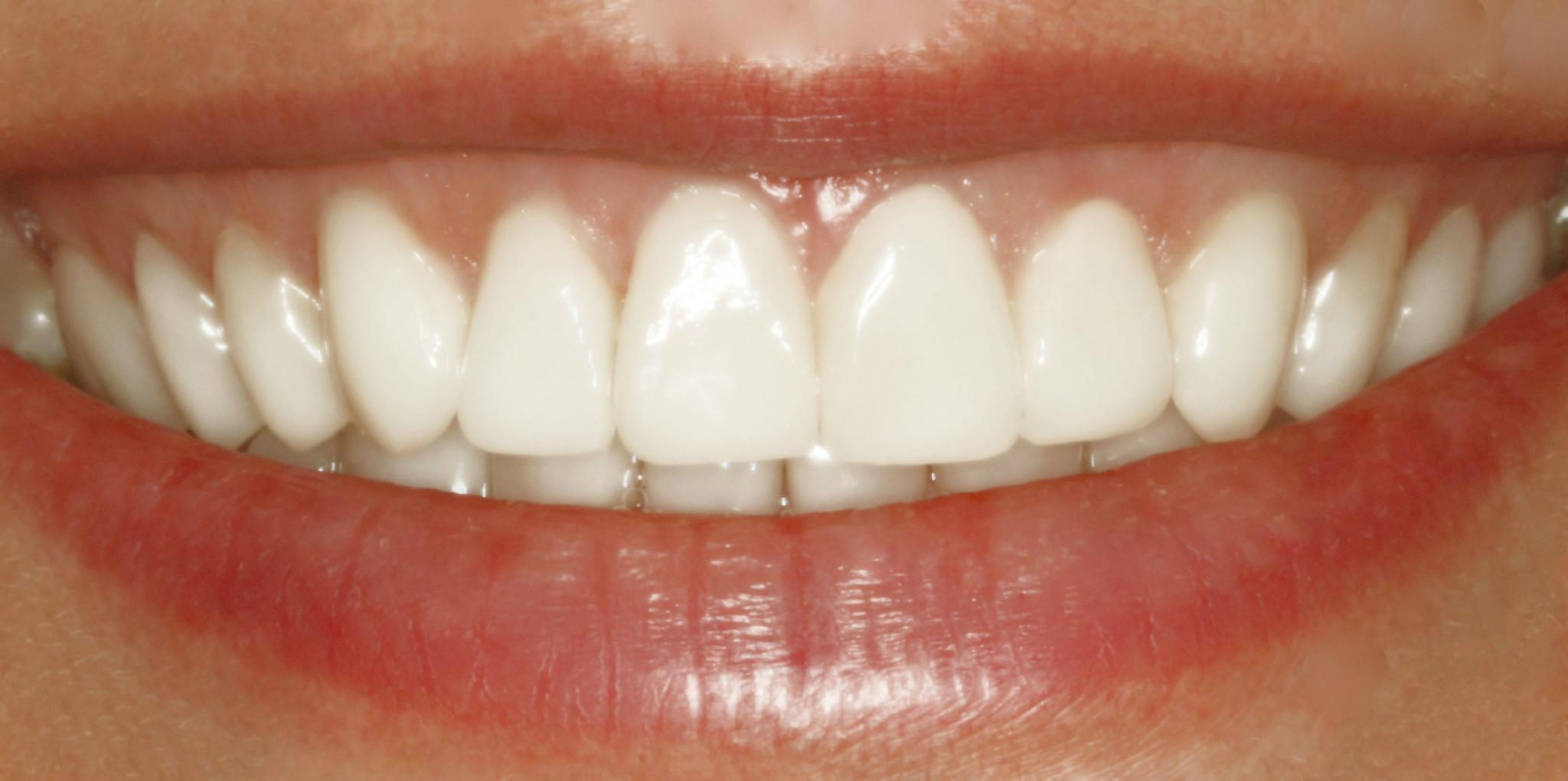 We are the best dental veneers dentistry in Sydney.