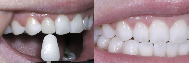 We are the experts of porcelain veneers in Sydney.