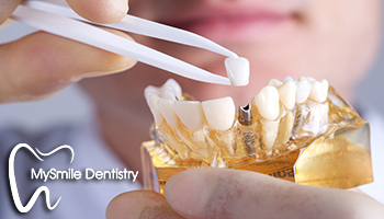 We have the best dentist for dental implants in Sydney.
