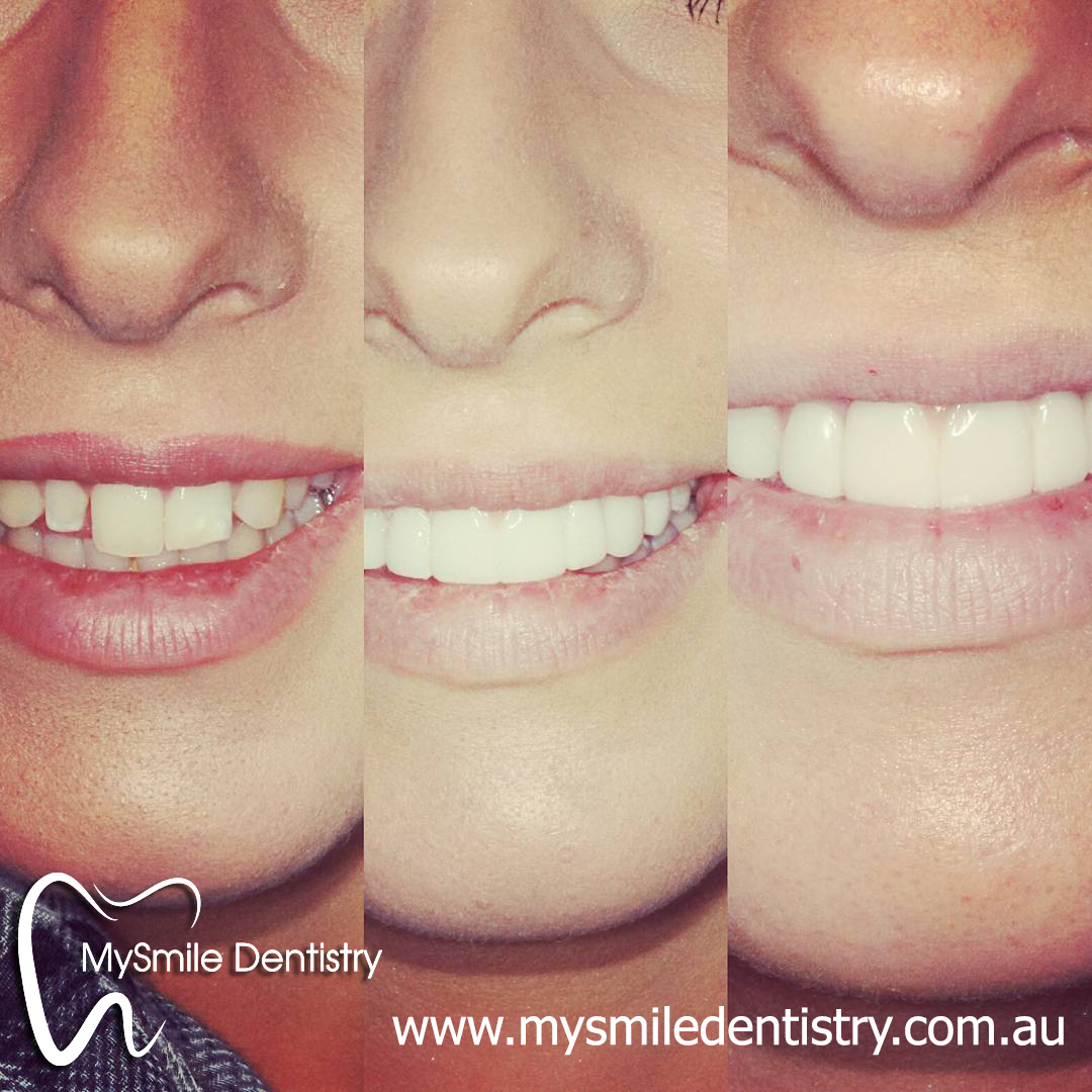 We are the best dentistry for Invisalign in Sydney.